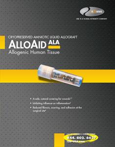 alloaid-ala-cvr-235x300