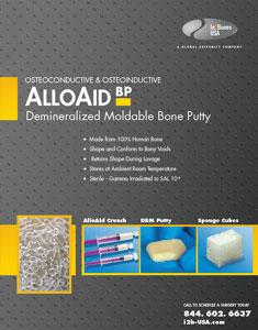 alloaid-bp-cvr-235x300