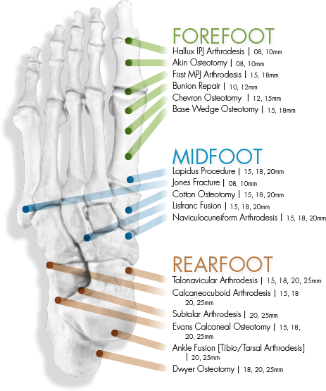 neospan-se-foot-indication01