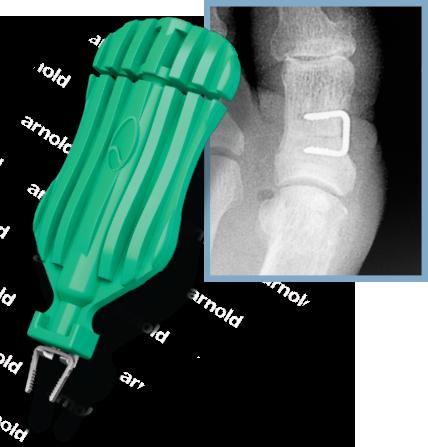neospan-se-foot-staple-w-xray